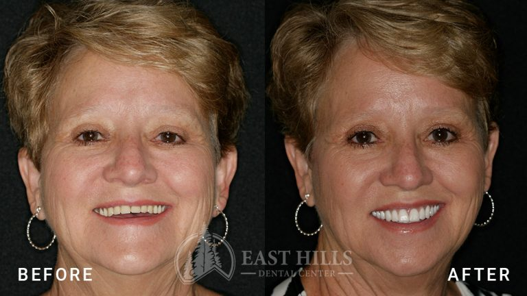 All-on-4 implants before and after